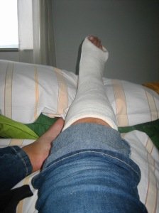 My leg in a cast