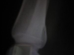 My ankle x-ray showing a fractured fibula (I think!)